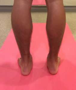 足のコンディショニング(インソール)